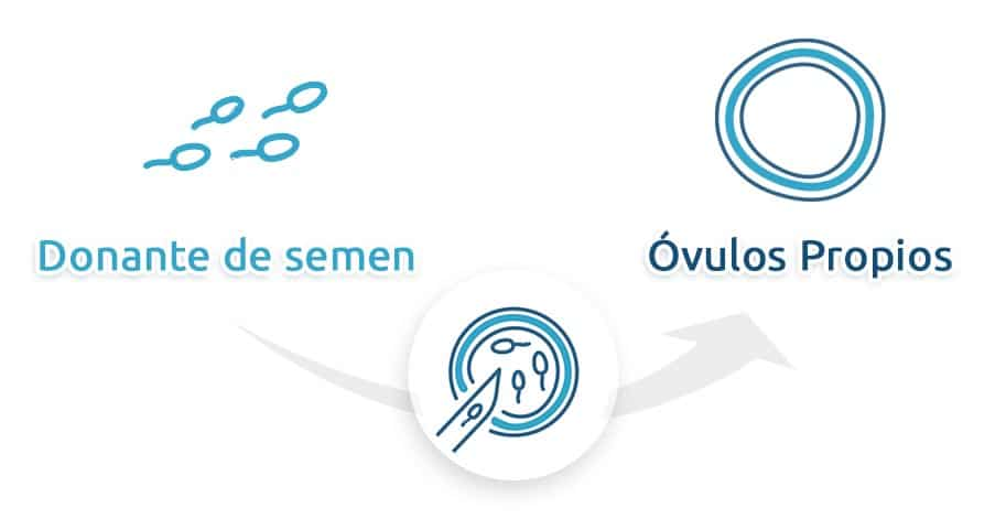 FIV con ovulos propios y donante del semen fertilidad